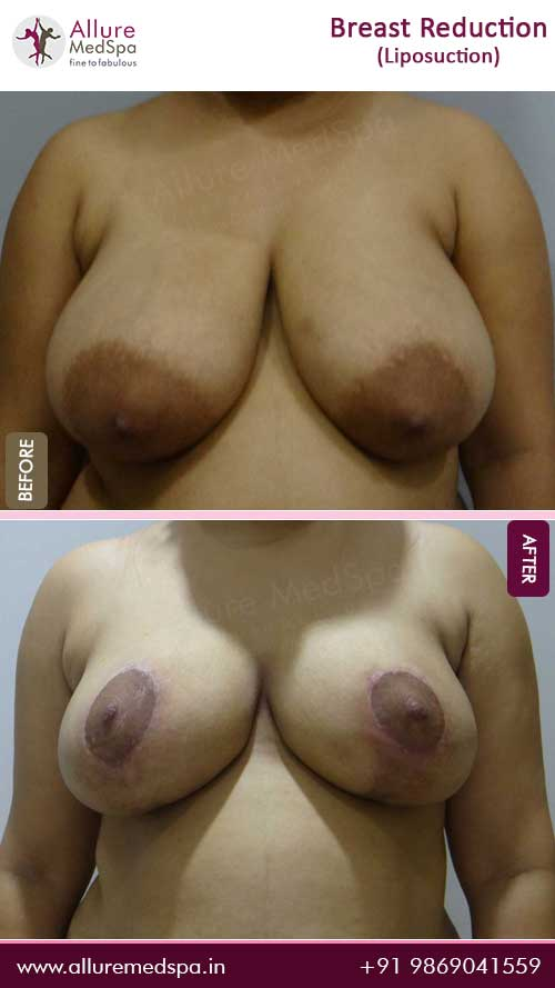 Breast-Reduction-With-Liposuction-Before-After-Photo-Mumbai-India