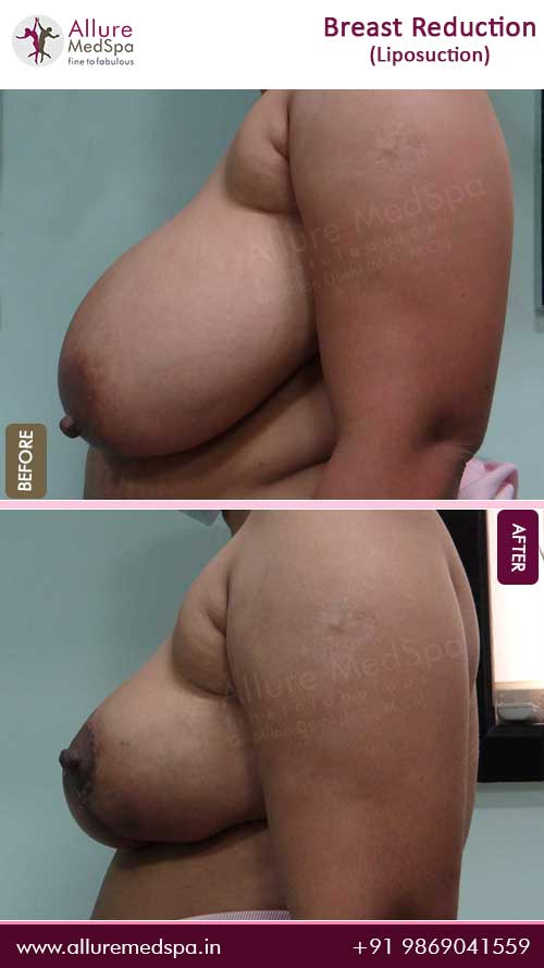 Breast-Reduction-With-Liposuction-Before-After-Pics-Mumbai