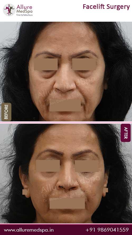 Rhytidectomy Before After Images Mumbai, India
