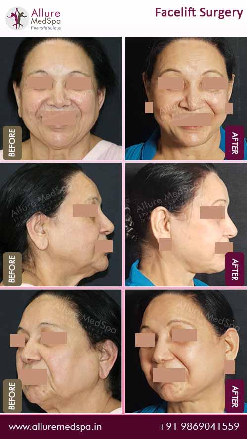 Rhytidectomy Before After Photos Mumbai, India