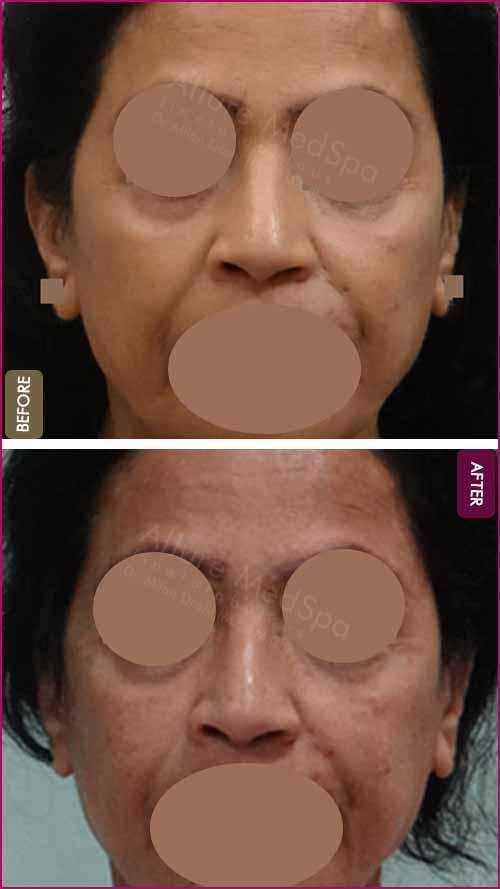 Autologous Fat Transplantation Before and After Photos in Mumbai, India
