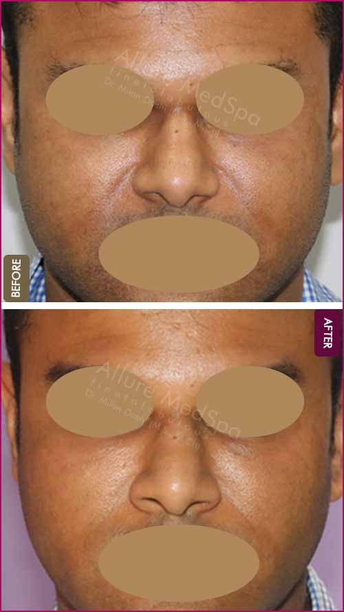 Fat Grafting Before and After Images in Mumbai, India