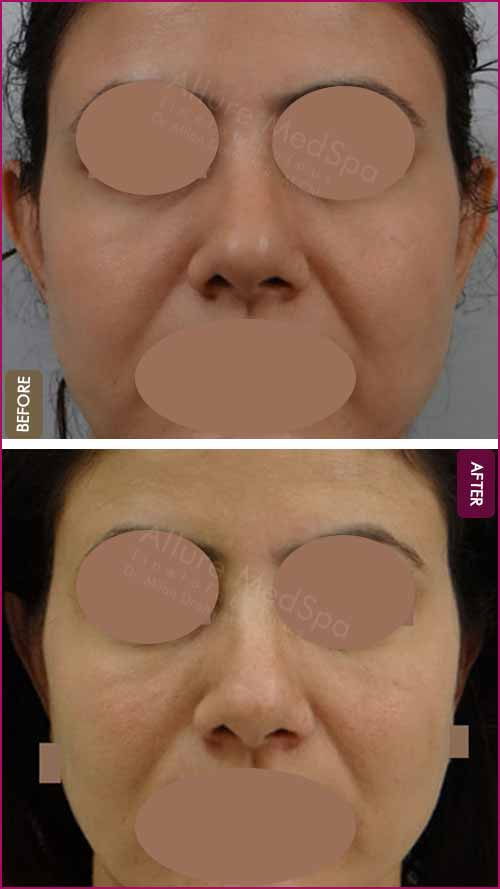 Fat Grafting Before and After Pictures in Mumbai, India