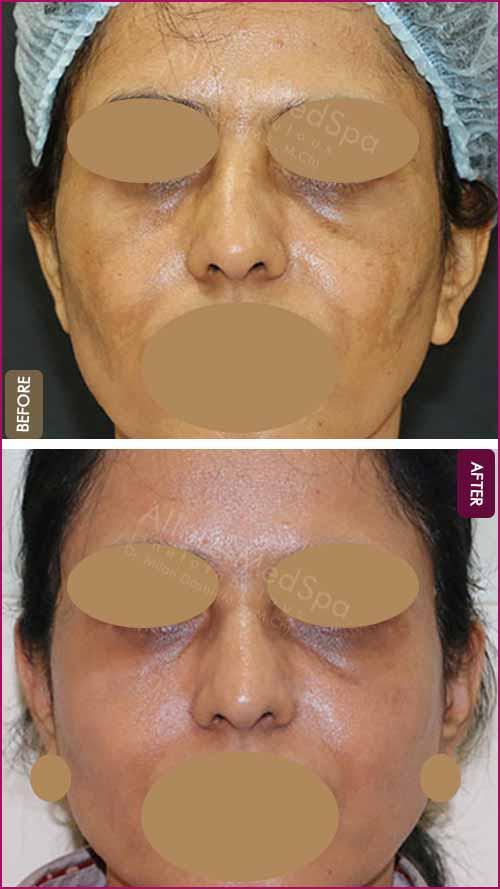 Facial Rejuvenation with fat graft