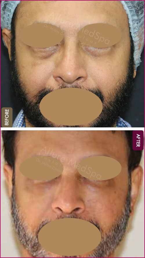 Fat Injections Before and After Images in Mumbai, India