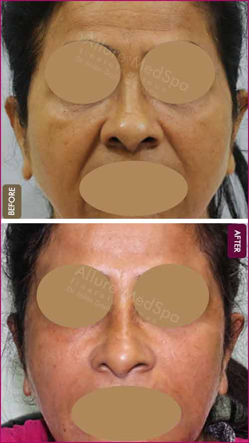 Fat Injections Before and After Pictures in Mumbai, India