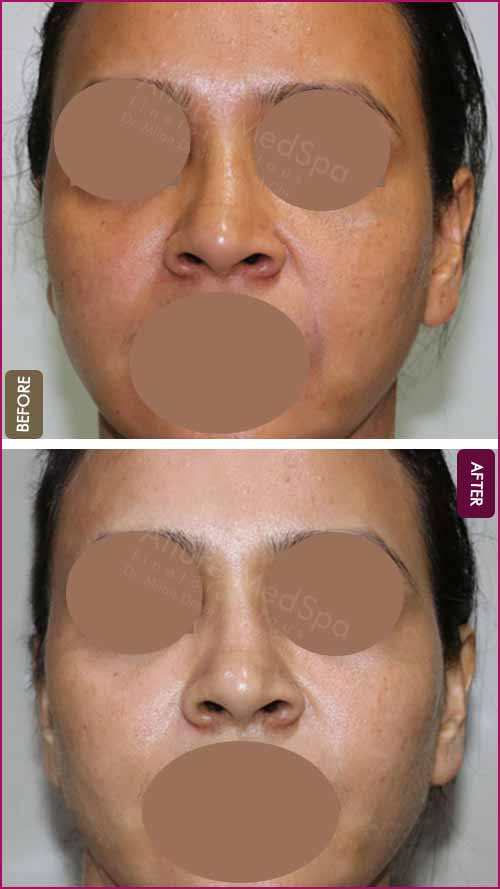 Fat Transfer Before and After Pictures in Mumbai, India