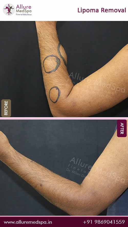Lipoma Removal Surgery Before and After Gallery in Mumbai, India