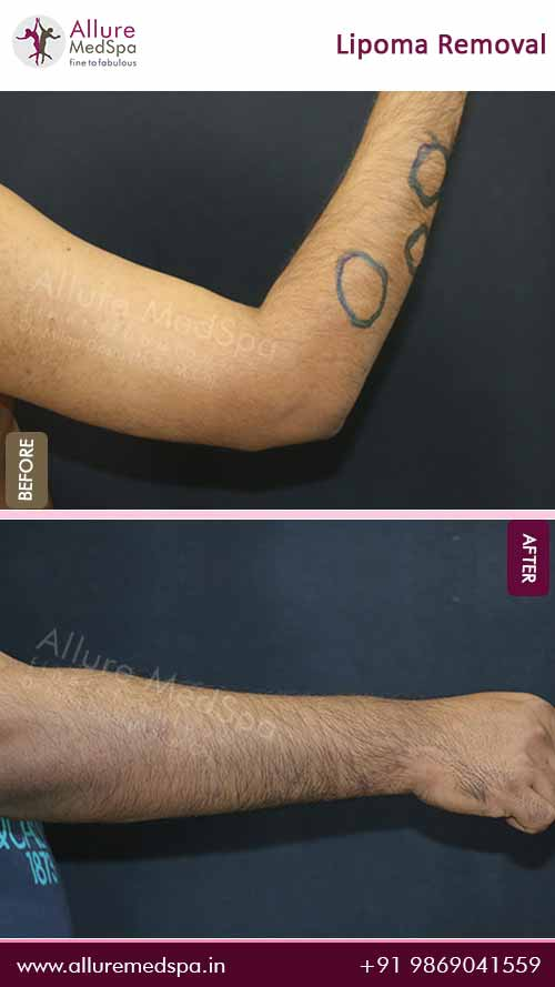 Arm Lipoma Removal Surgery Before and After Images in Mumbai, India