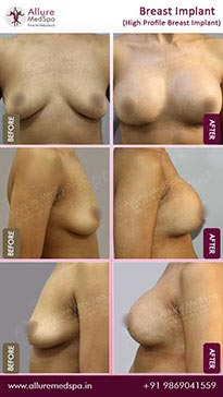 Breast Augmentation Before and After Images in Mumbai, India