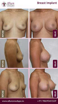 Breast Implants Before and After Pictures in Mumbai, India