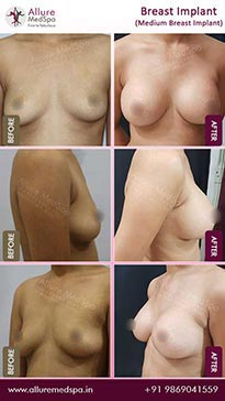 Boob Job Before and After Gallery in Mumbai, India