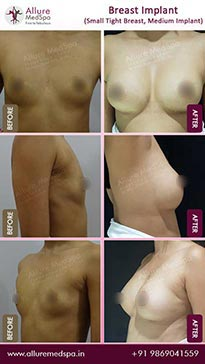Augmentation Mammoplasty Before and After Result in Mumbai, India