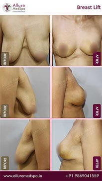 Breast Lift Surgery Before and After Gallery in Mumbai, India