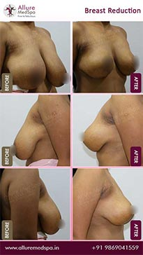 Breast Reduction Surgery Before and After Result in Mumbai, India