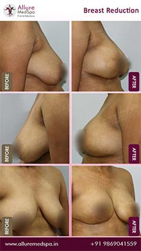 Breast Reduction Before and After Images in Mumbai, India