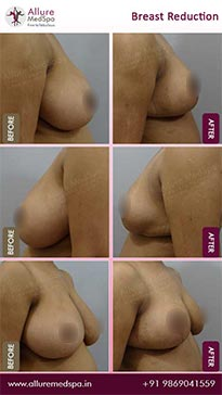 Breast Reduction Surgery Before and After Pictures in Mumbai, India
