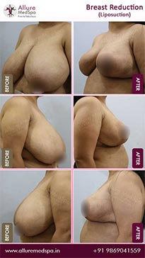Breast Reduction Before and After Gallery in Mumbai, India