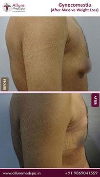 Gynecomastia image 1