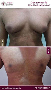 Gynecomastia image 3
