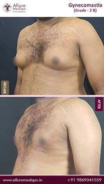 Gynecomastia image 4