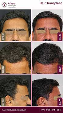 Hair Transplant Before and After Images in Mumbai, India