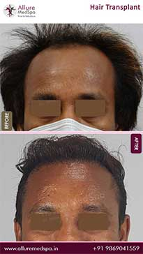 Hair Transplant Before and After Pictures in Mumbai, India