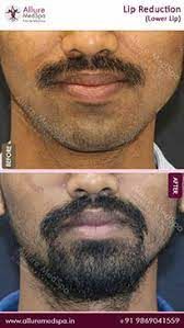 Lip Reduction Surgery Before and After Pictures in Mumbai, India
