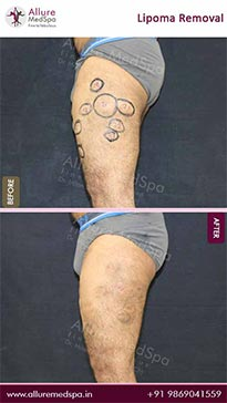 Lipoma Removal Surgery Before and After Result in Mumbai, India