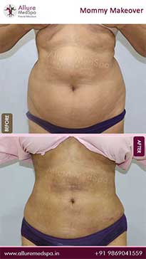 Mommy Makeover Surgery Before and After Gallery in Mumbai, India
