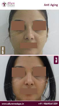 Anti Aging Before and After Images in Mumbai, India