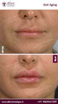 Anti Aging Before and After Pictures in Mumbai, India