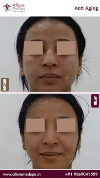Anti Aging Treatment Before and After Gallery in Mumbai, India