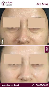 Anti Aging Treatment Before and After Images in Mumbai, India