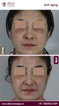 Anti Aging Treatment Before and After Photos in Mumbai, India