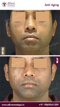 Anti Aging Treatment Before and After Pictures in Mumbai, India