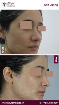 Anti Aging Treatments Before and After Result in Mumbai, India