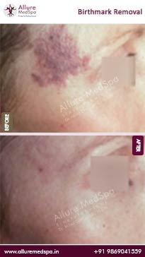 Birthmark Removal Before and After Pictures in Mumbai, India