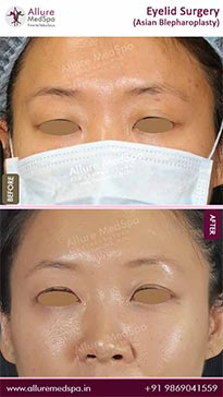Blepharoplasty Before and After Gallery in Mumbai, India