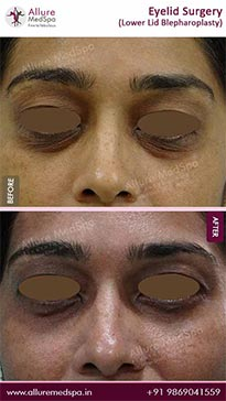 Blepharoplasty Before and After Images in Mumbai, India