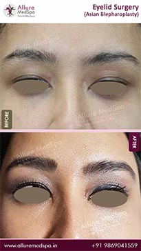 Blepharoplasty Before and After Photos in Mumbai, India
