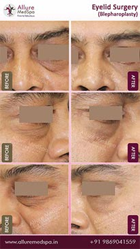Blepharoplasty Before and After Pictures in Mumbai, India