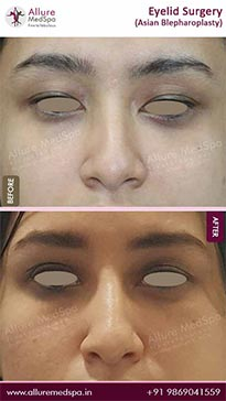 Blepharoplasty Before and After Result in Mumbai, India