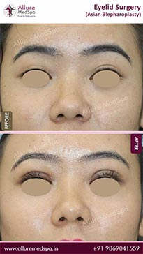 Eyelid Surgery Before and After Pictures in Mumbai, India
