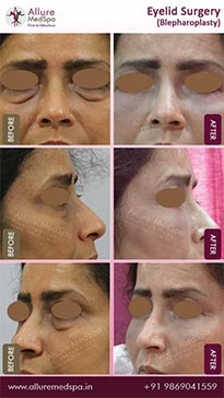 Eyelid Surgery Before and After Result in Mumbai, India