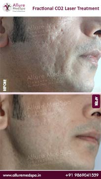 Fractional CO2 Laser Treatment Before and After Pictures