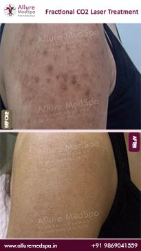 Fractional CO2 Laser Skin Treatment Before and After Images