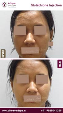 Glutathione Injection Before and After Images in Mumbai, India