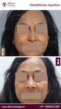 Glutathione Injection Before and After Images