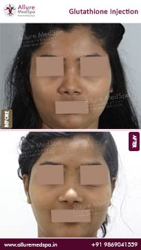 Glutathione Injection Before and After Photos in Mumbai, India